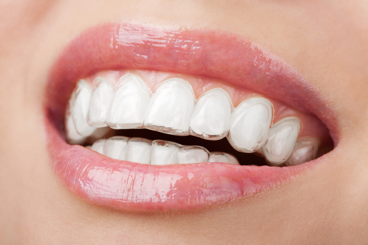 Smiling with Invisalign clear aligners